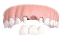Dental implants as an alternative to a dentel bridge