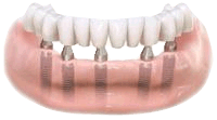 Abutments attached to dental implants and bridge